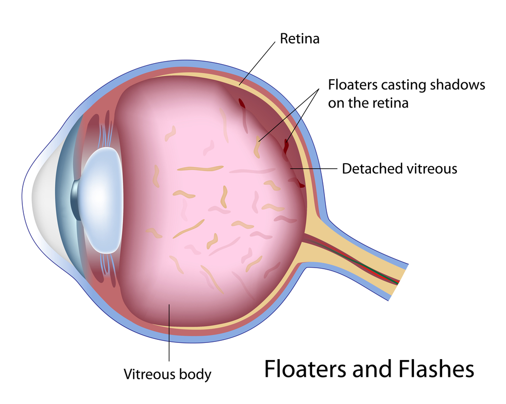Eye Floaters Page Image