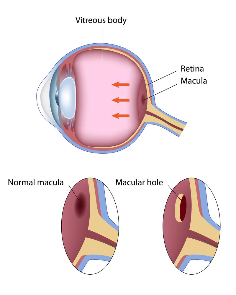 Macular Hole Image