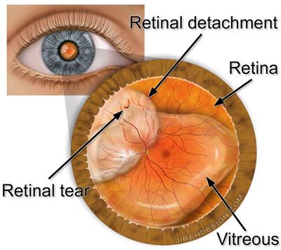 9eb5fd7821a Retina Health Center – Retinal Tear and Detachment